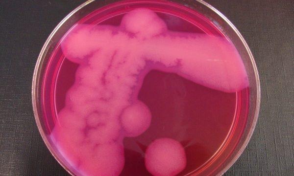 Petriplaat met cultuur van de bacterie cereus op een roze medium